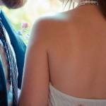 背中ニキビ跡 結婚式は?治すのとウエディングドレスは?